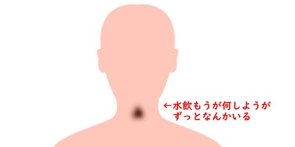 dys7_01