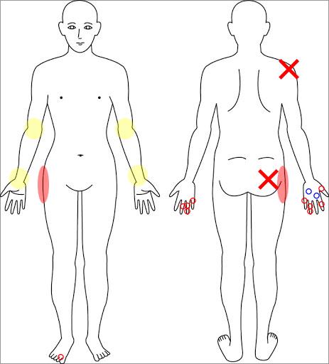 pain02